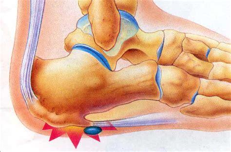 a to heel heel bone spurs and plantar fasciitis