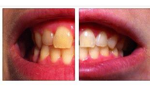 Zähne Polieren Beim Zahnarzt by Mein Leben Mit Zahnspange M 228 Rz 2013
