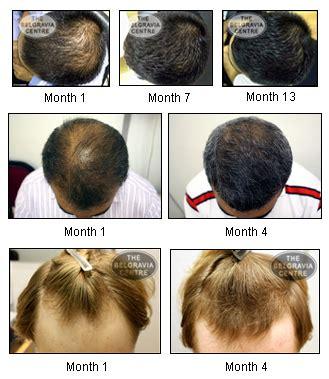rogaine propecia success stories preventing baldness