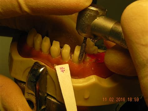 protesi mobile parziale odop protesi mobile parziale con attacchi e protesi