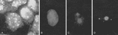 nucleolar pattern definition antinuclear antibodies musculoskeletal key
