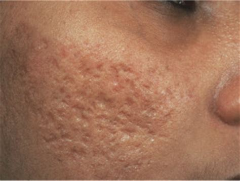 how to get rid of acne scars laser acne scar removal