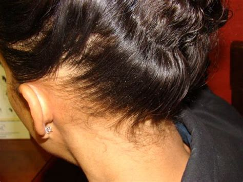 hair loss behind the ears in women hair loss above ears female 18 afro american hair loss