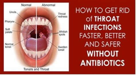 12 effective home remedies to treat a strep throat