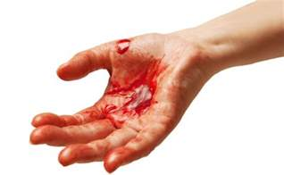 bleeding after blood test foods to thin blood