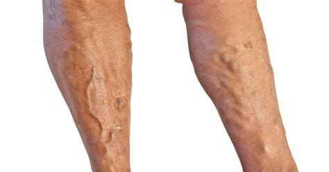 8 Symptoms Of Varicose Veins by Varicose Veins Causes Symptoms And Remedies