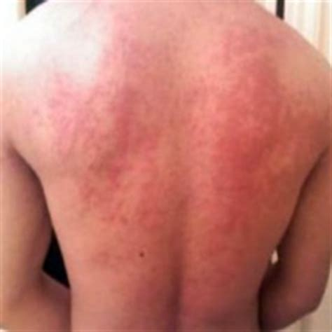 heat rash from tanning bed image gallery heat urticaria