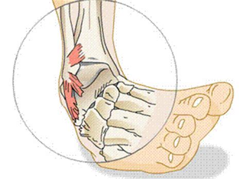 Wandlen Innen Led how to heal a sprained ankle fast new health advisor