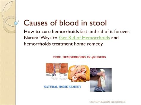 Why Would Blood Be In Stool by Causes Of Blood In Stool