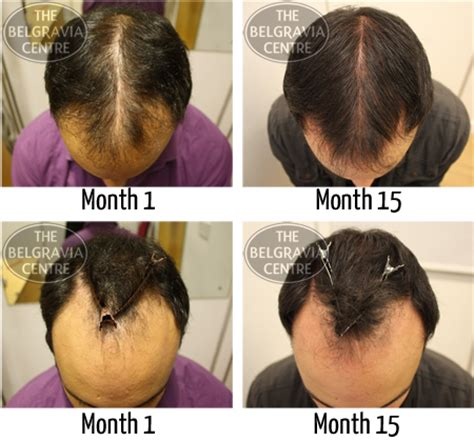 male pattern hair loss diet diagnosis male pattern hair loss dietwomantips