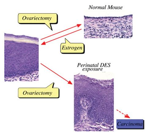 chemical induction of ovarian epithelial carcinoma in mice chemical induction of ovarian epithelial carcinoma in mice 28 images abt 898 induces tumor