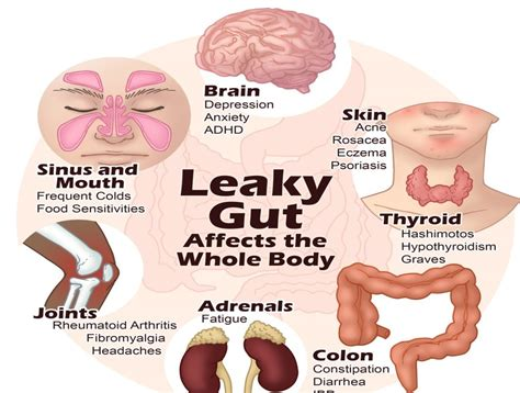 leaky gut symptoms causes tests and treamtenets