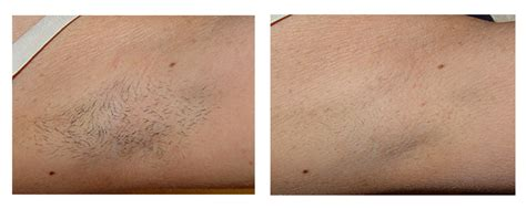 full brazilian hair removal how much is a full brazilian laser hair removal at ideal