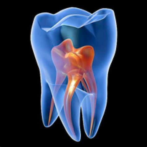 imagenes en 3d haciendo bizcos endodoncia15 cl 237 nica dental b j
