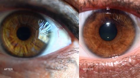 Do Change Color After Detox by Iridology My Eye Colour Changes
