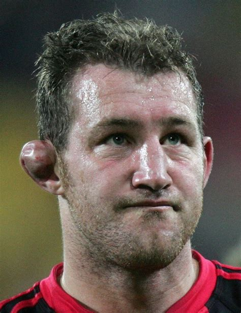 cauliflower ear the comprehensive guide to cauliflower ear