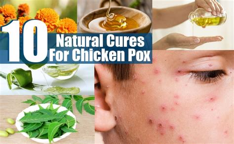 10 best and effective ways to cure chicken pox naturally
