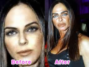 Before Surgery Plastic Surgery Disasters Before And After 16