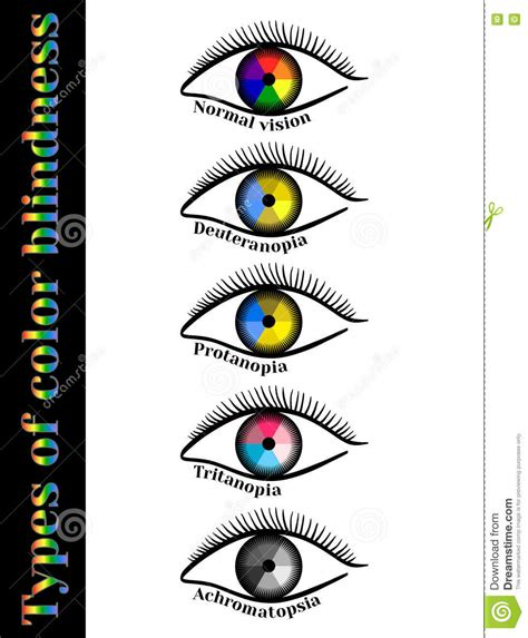 types of color blindness types of color blindness stock photo image of illusion