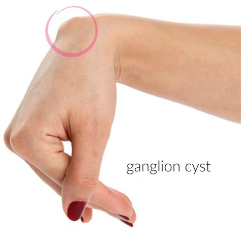 up on a ganglion cyst recipe