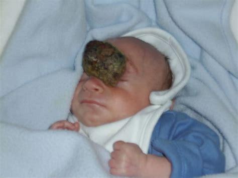 Born To The boy born with brain outside skull celebrates 10th