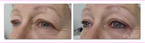 permanent makeup gallery brows