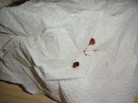 squashed bed bug picture of comfort hotel finchley