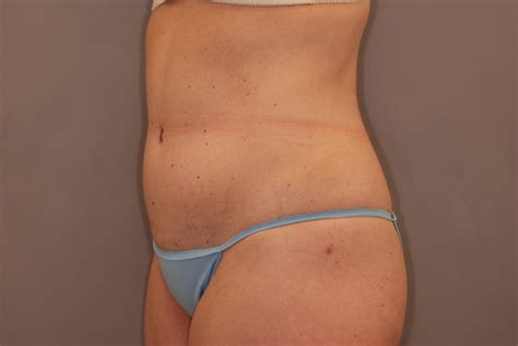 can you have a tummy tuck during c section tummy tuck in minneapolis st paul by dr mahjouri