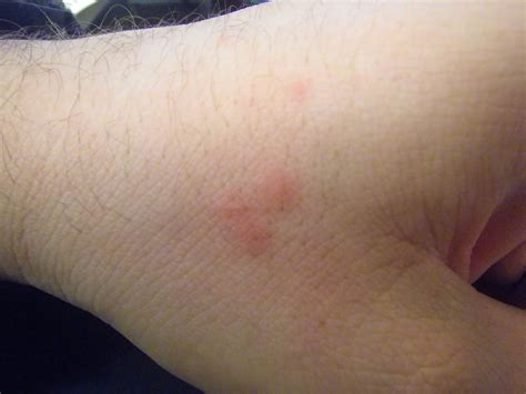bed bugs bites pictures mattress single bed bug bite