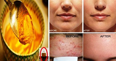Masker Acnes amazing anti acne turmeric mask for glowing skin
