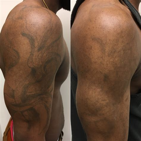 tattoo removal best results removal results enlighten aesthetic cleveland