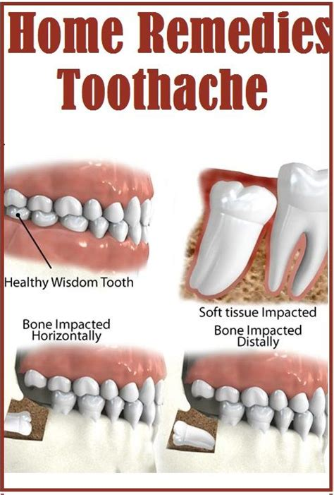 home remedies for toothache fitness remedies