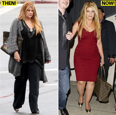 kirstie alley weight loss actress sued for reportedly rapid weight loss orange county hair restoration center