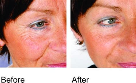 light therapy bed before and after 43 best light therapy before and after images on