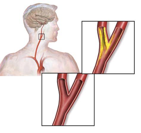 stenosi carotide interna carotisstenose ursachen symptome und behandlung