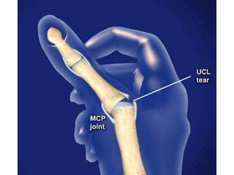 thumb laceration thoughts foundation utley of the philadelphia phillies thumb injury