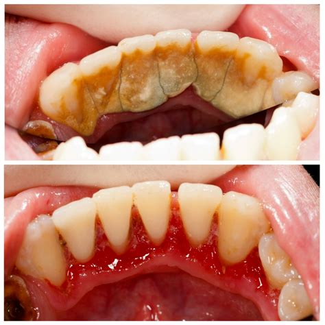 teeth cleaning dental teeth cleaning debridement before after photos