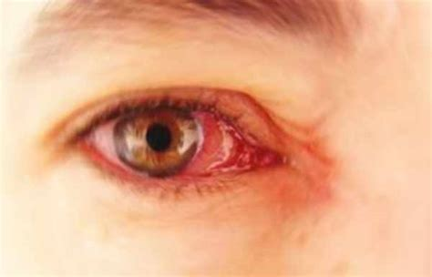 dolore interno occhio gallery cefalea a grappolo associazione cefalea