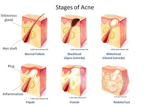 acne diagram types of acne pimples the acne project
