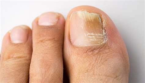 nail fungus bend onychomycosis prevent foot infections
