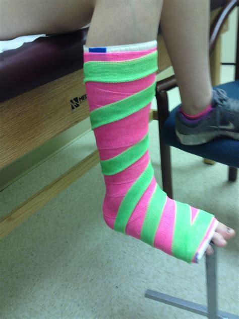 leg cast colors leg cast with stripes fiberglass