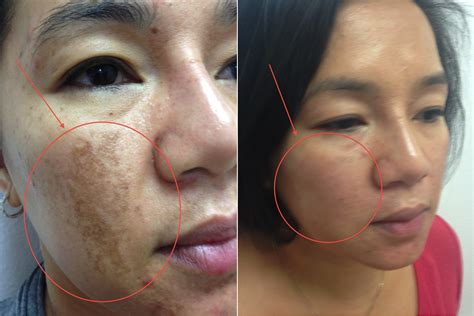 pigmented lesions melasma skin perfect brothers laser