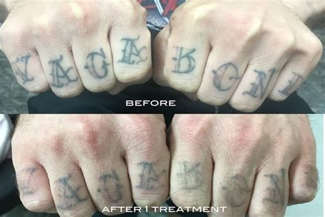 tattoo finger before after before after photos laser tattoo removal