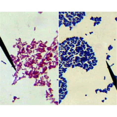 what color does gram positive bacteria stain bacterial gram staining