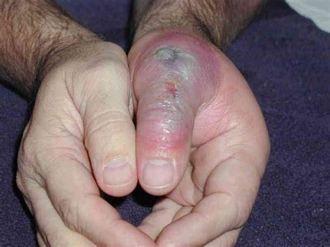 brown recluse bite on brown recluse spider bite stages pictures treatment symptoms diseases pictures