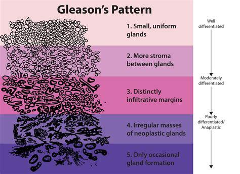 pattern grading wikipedia gleason grading system wikipedia