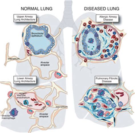 blogger lung new blog 1 fibrosis of lungs