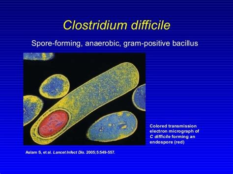 Pics Of C Diff Stools by C Difficile Archives Allergies Your Gut