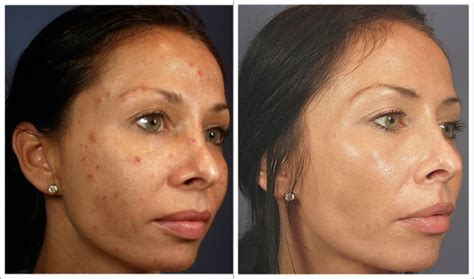 light chemical peel before and after vi peel best chemical peel austin