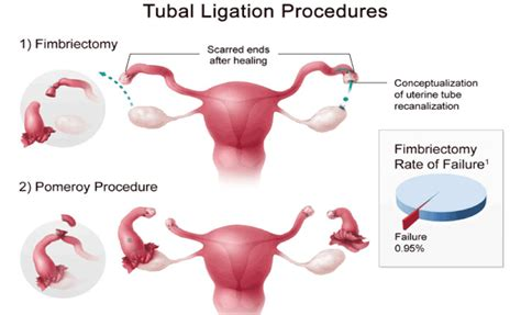 having tubes tied during c section chances of getting after tubal ligation during c section